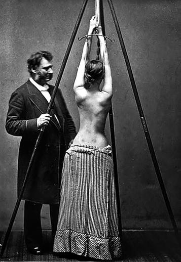 1870s photo of American orthopedic surgeon Lewis Albert Sayre observes the change in the curvature of the spine as a woman patient who has scoliosis self-suspends herself prior to being wrapped in a plaster of Paris bandage as a treatment for the curvature of the spine. Source: https://en.wikipedia.org/wiki/Lewis_Sayre#/media/File:Lewis_Albert_Sayre3.jpg
